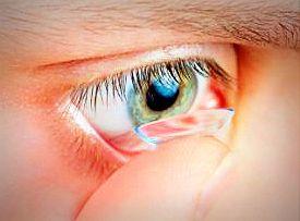 soczewki-kontaktowe-toryczne 1