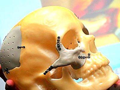face-implant-800x450A